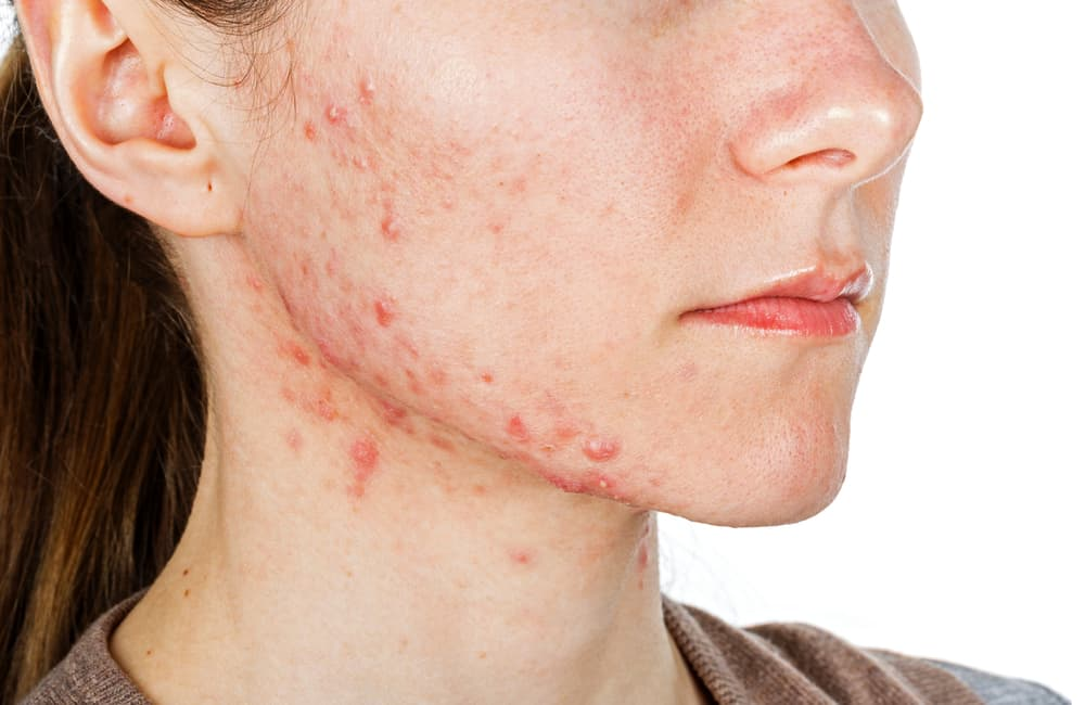 illustration of person with acne scar