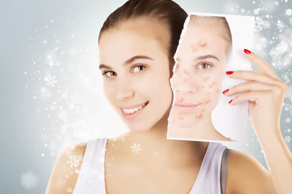results of acne treatment in Malaysia